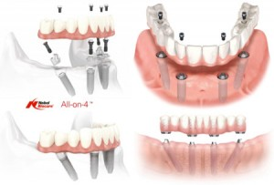 all-on-4-dental_implants_st_charles_il_60175